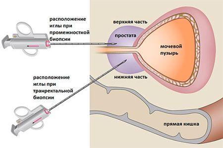 Схема биопсии простаты