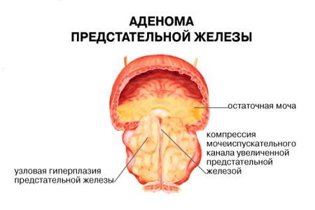 Узловая аденома предстательной железы с подпузырный ростом