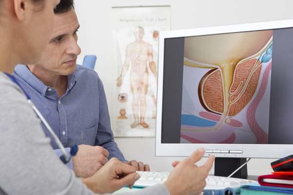 Грибковый (кандидозный) простатит: причины заражения, симптомы и лечение
