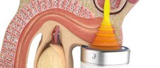 Лечение простатита и аденомы простаты ударно-волновой терапией