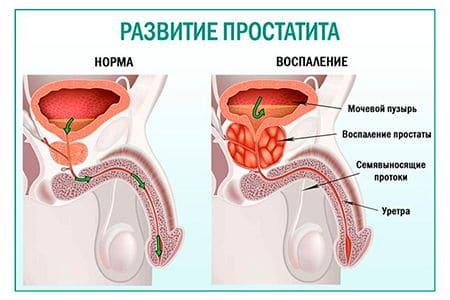 Рецепты средств на ромашке от простатита для мужчин, отзывы